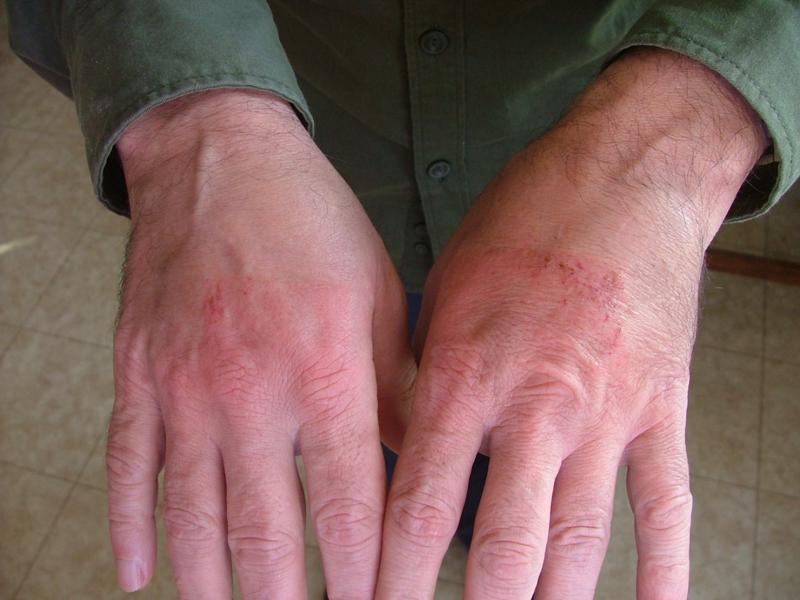 Краснеющие или синеющие руки